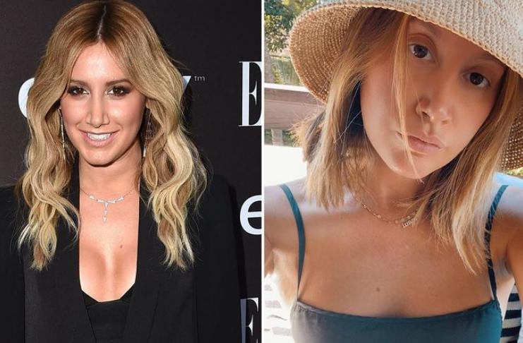 Ashley Tisdale revela motivo da cirurgia de remoção do implante mamário